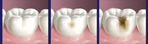 Western Heights Dental